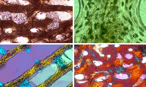 Signaux struturel, fonctionnel et physiologique dans la microanatomie et l'histologie du centrum vertébral des ichtyosaures