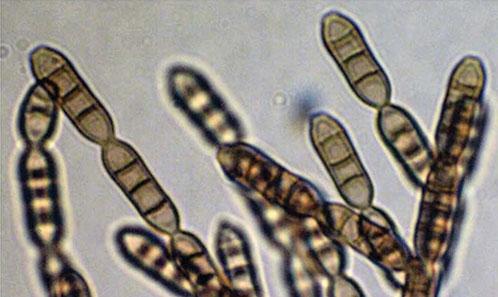 <i>Septonema lohmanii</i> G. Delgado& O. Koukol, sp.nov., une nouvelle espèce chez les Mytilinidiales (Dothideomycetes) et la position phylogénétique de <i>S. fasciculare</i> (Corda) S. Hughes